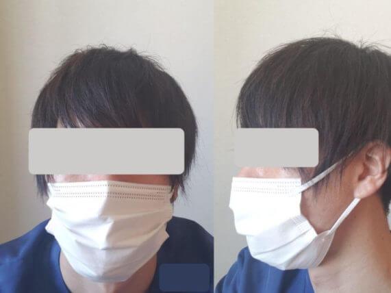 バリエールEXマスク 装着後